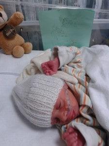 Premature baby in SCBU